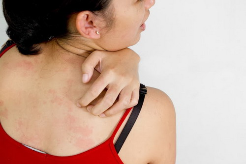 Some Common Natural Remedies for Itchy Skin