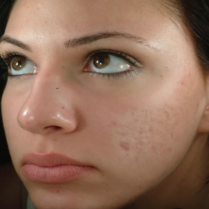 Medication for facial scars