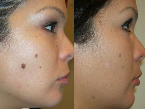 The-Best-Natural-Methods-of-Mole-Removal-at-Home