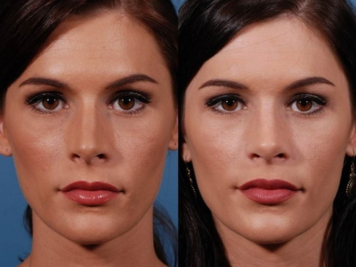 Easy-Tips-for-Reshape-Nose-Cartilage-without-Surgery