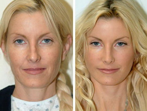 Some-Best-Methods-of-Face-Lift-without-Surgery