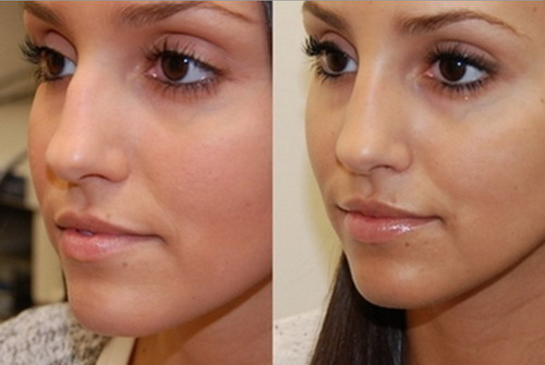 Some-Simple-Procedures-of-Nose-Reshaping-Without-Surgery