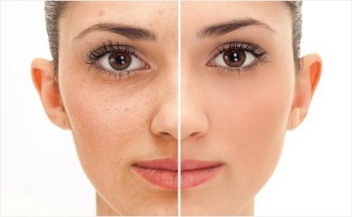 5-Natural-Remedies-to-Get-Rid-of-Wrinkles-Under-Eyes